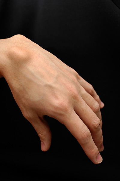 Ganglion Cyst In Wrist Finger Foot Treatment And