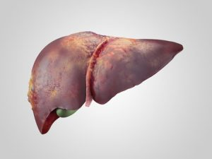 sick human liver with cancer isolated