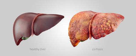 Liver pain pictures location symptoms causes treatment and realistic illustration of comparison of healthy and sick cirrhosis human livers ccuart Choice Image