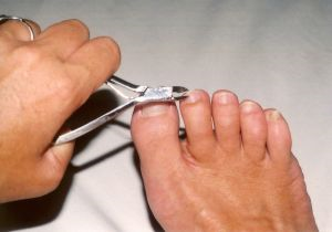 prevention from ingrown toenail infection