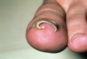 ingrown toenail causes