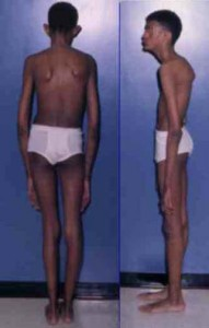 skeletal abnormality in marfan syndrome