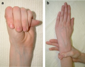 marfan syndrome pic
