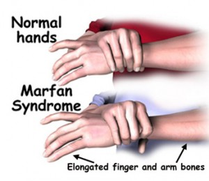 marfan syndrome picture
