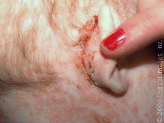severe seborrheic dermatitis on scalp