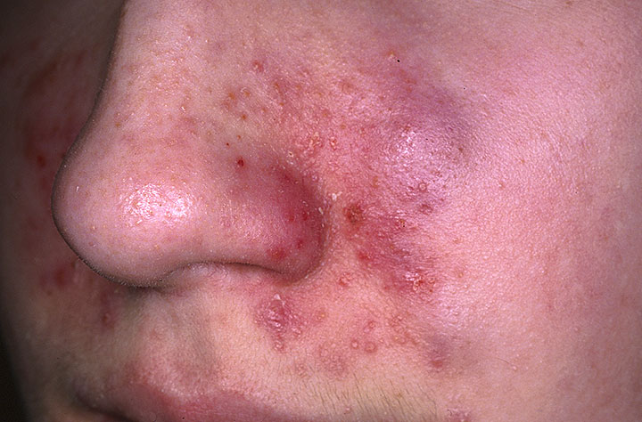 seborrheic dermatitis treatment