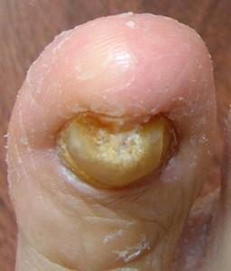 El tratamiento láser de la uña encarnada en kurske