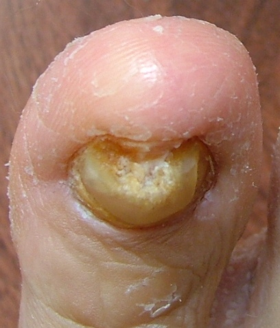 Toenail Fungus Symptoms Pictures Treatment Home Remedies And Cure