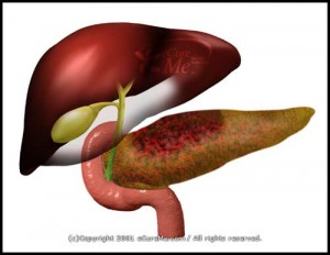 acite pancreatitis