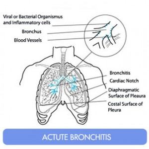 Coughing Up Phlegm - bronchitis pictures