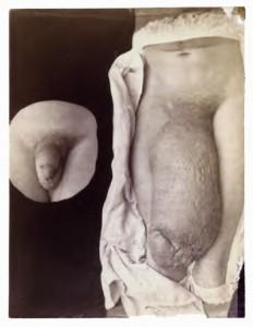 Elephantitis penis