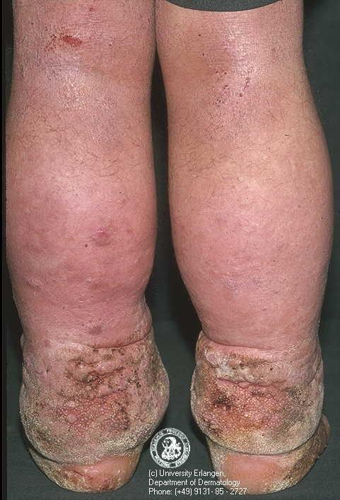 Elephantitis in Scrotum Disease