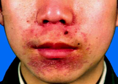 Are absolutely Facial dermatitis causes sorry