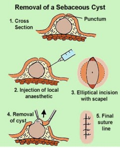 Sebaceous Cyst (Epidermal Cyst) - Pictures, Causes ...