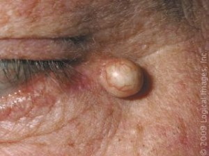 Sebaceous cyst photos