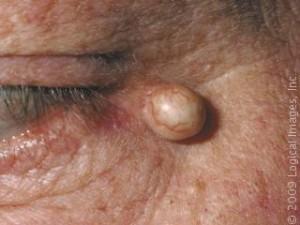 Sebaceous cyst photos