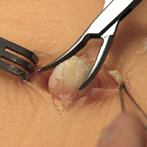Sebaceous Cyst (Epidermal Cyst) – Pictures, Causes ...