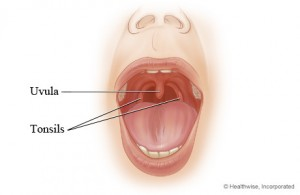 Swollen Uvula photo