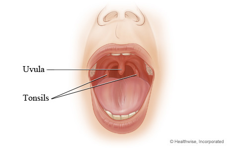 swollen uvula – symptoms, causes, treatment and remedies uvula diagram