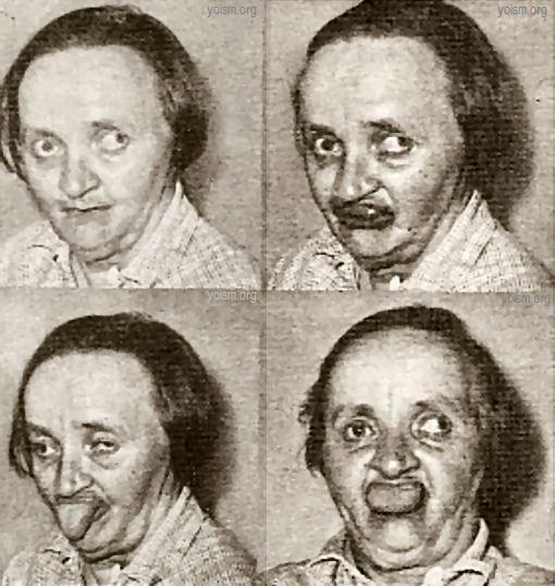 oral-facial-dyskinesia