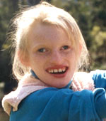 angelman syndrome photo