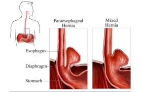 mixed and paraesophageal hiatal hernia