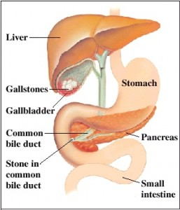 symptoms of Acute Pancreatits 2