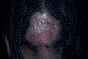 tinea capitis images
