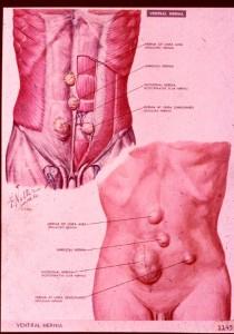 ventral hernia