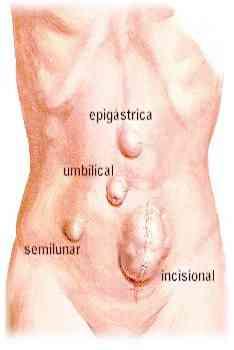 i gall bladder diet after surgery foods