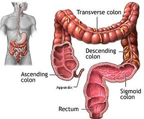 Diverticulosis photos
