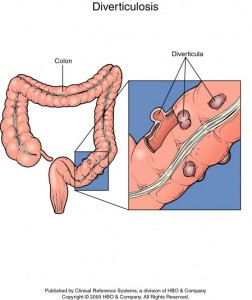 photos of Diverticulosis