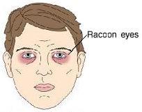 Ecchymosis photos