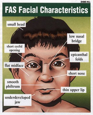 Fetal Alcohol Syndrome - Pictures, Symptoms, Statistics and
