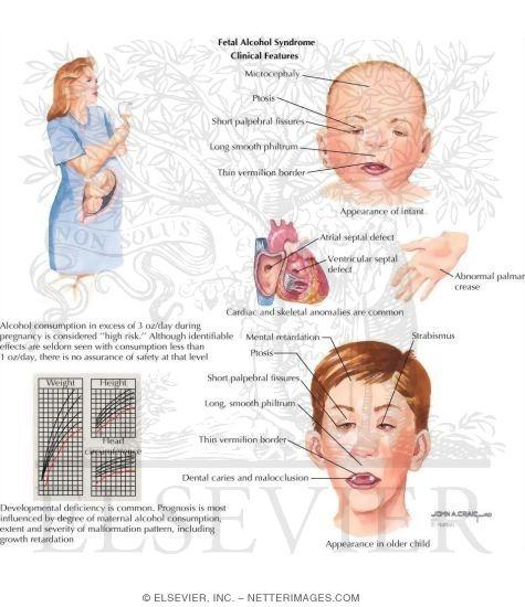 Fetal alcohol syndrome statistics