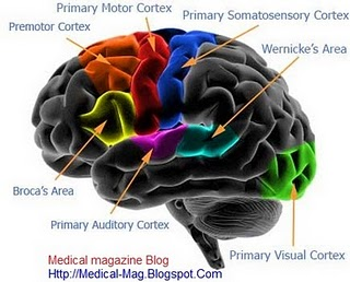 Huntingtons Disease Facts Symptoms Causes Pictures And