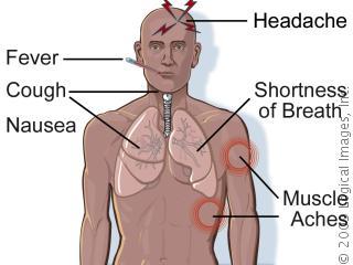 Legionnaires Pneumonia Treatment