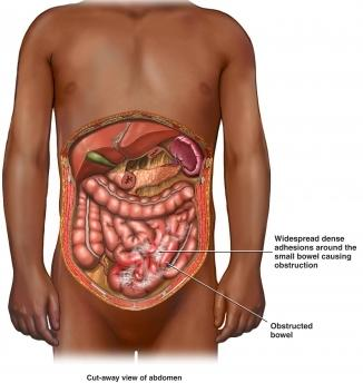 Paralytic Ileus Definition Causes Symptoms And Treatment