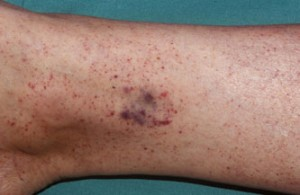 Petechiae pictures