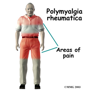 Polymyalgia Rheumatica pictures