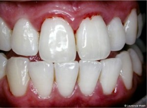 Yashira Alambares How To Achieve Naturally White Teeth