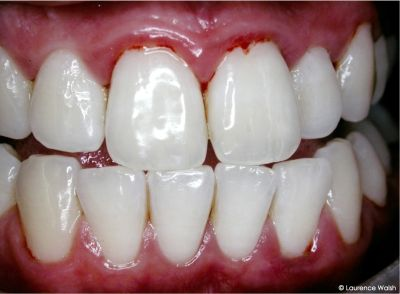 swollen gums – causes, symptoms, risks, treatment and home remedy, Skeleton