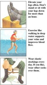 swollen ankle treatment