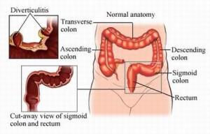 Diverticulitis pictures