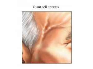 giant cell pictures