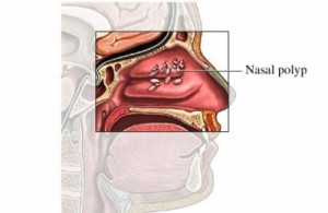 photos of nasal polyps