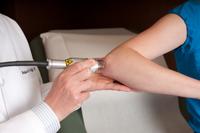 psoriasis treatment picture
