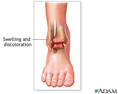 swollen ankles – causes, symptoms, pictures and treatment, Skeleton