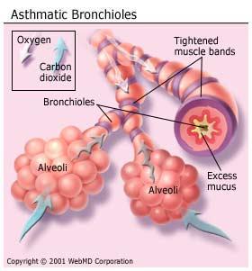 astma bronkitis
