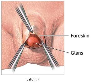 Balanitis | Pictures, Causes, Symptoms and Treatment